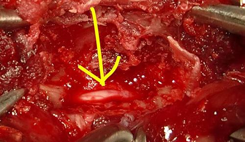 椎間板ヘルニアの手術