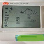 自動尿検査